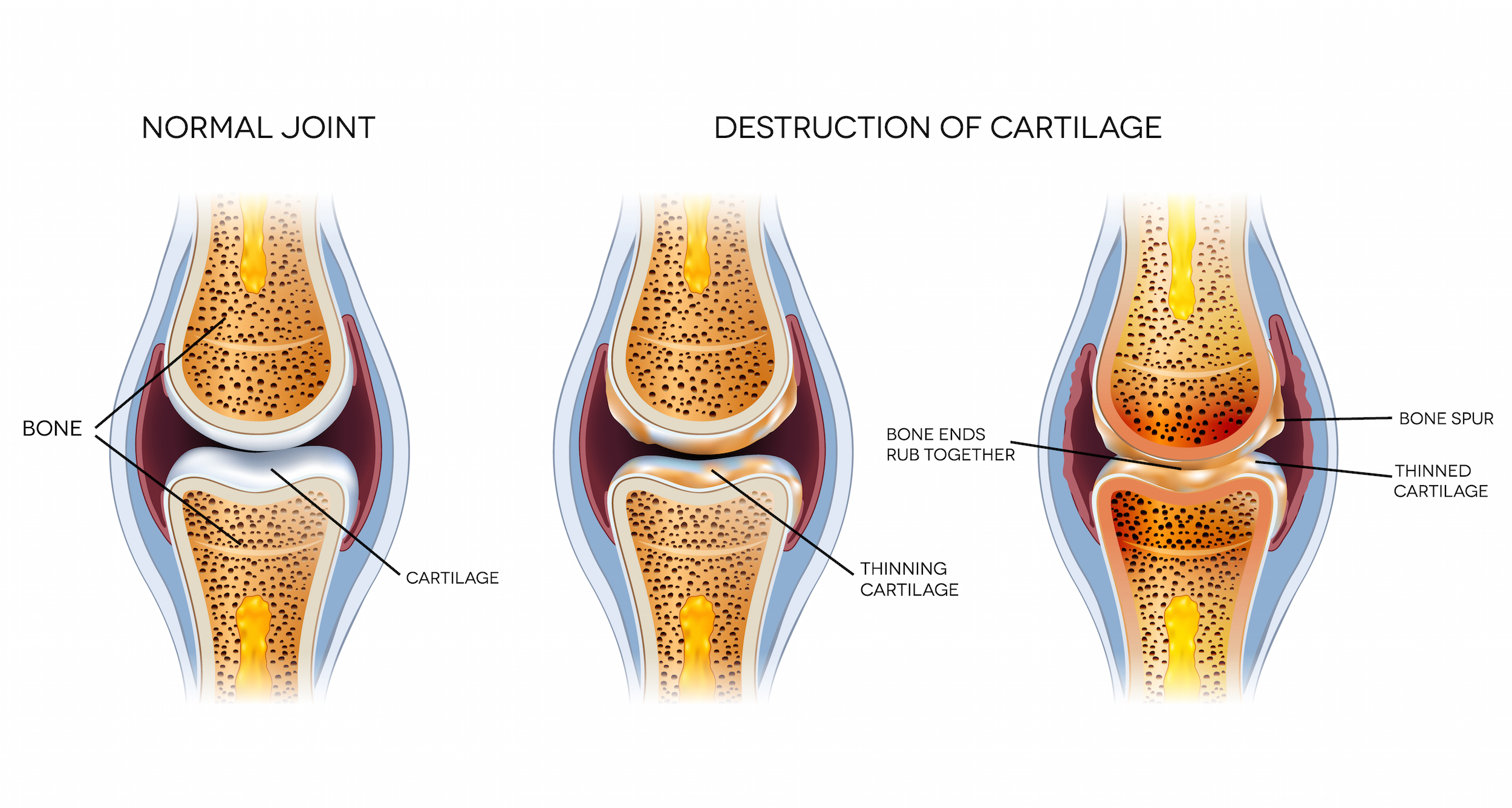 new ways to grow cartilage osteoarthritis research