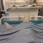 David_Ankle_Replacement_Juvenile_Arthritis