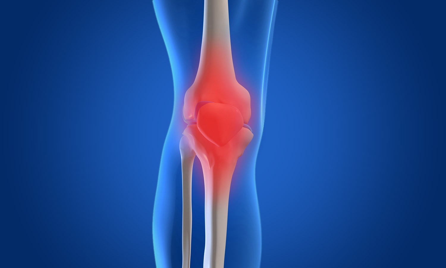 Total Knee Replacement | The Good, The Bad and The Ugly