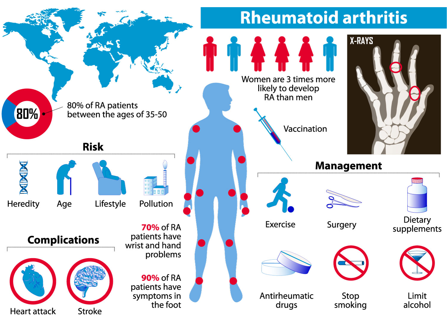 A Brief History Of Rheumatoid Arthritis Arthritis Research Arthritis National Research Foundation