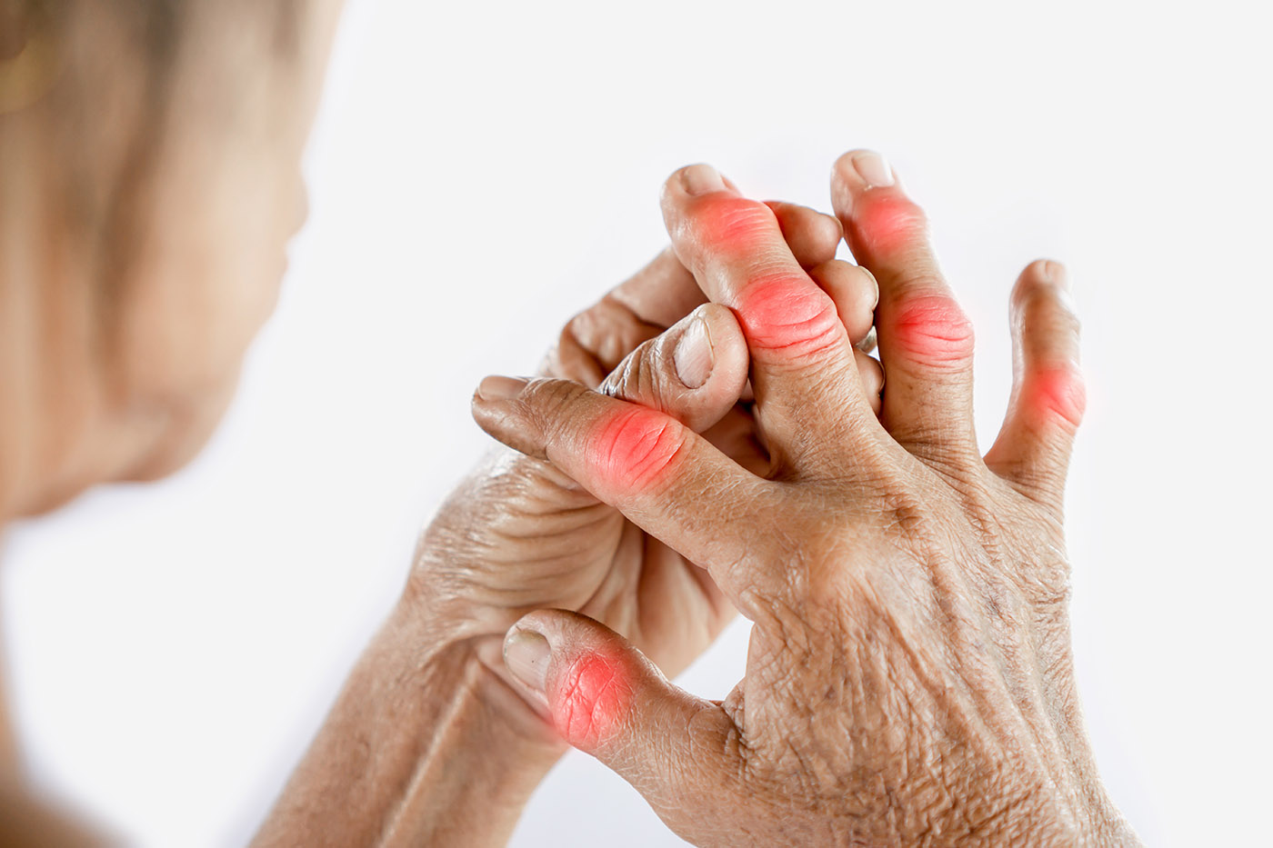 Asian woman hand suffering from joint pain with gout in finger - Arthritis  Research | Arthritis National Research Foundation